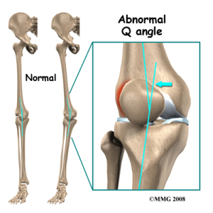 knee_tendonitis_patella_Qangle