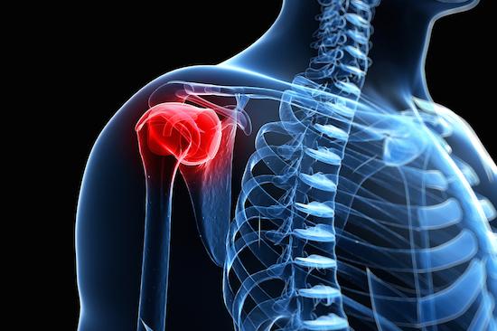dolore-spalla